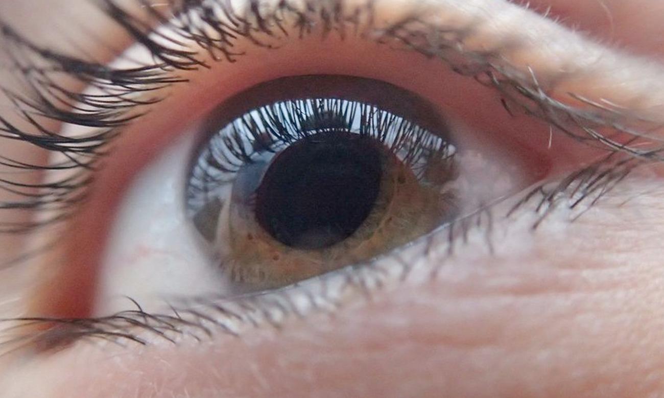 queratocono-deformacion-de-la-cornea